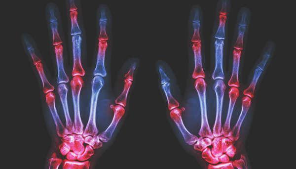 Rheumatology - InMyArea com